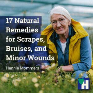 17 Natural Remedies for Scrapes, Bruises, and Minor Wounds