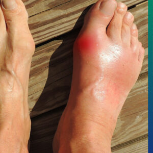 Gout attacks are painful